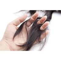 Saçlarımız Niçin Hızlı Dökülüyor?