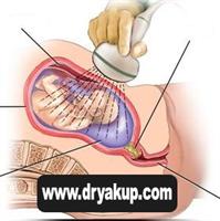 Ultrason Nerelerde Kullanılır