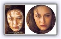 Vitiligo Nedir ? Nasıl Tedavi Edilir ?