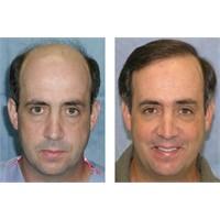 Saç Ekimine Karar Verirken