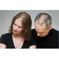 Saç Dökülmesi İçin Ne Yapabilirim ?