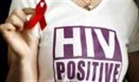 Türkiye de Kaç Aids Hastası Var ?