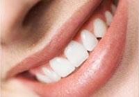 Dişleriniz Bem Beyaz Olsun !!