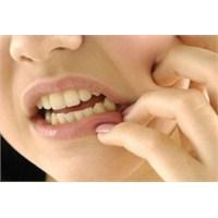 Yazın Diş Hassasiyeti Artıyor!