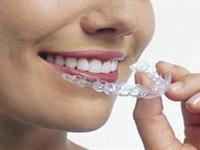 Dişlerde Çapraşıklık Nasıl Düzeltilir?
