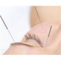 Yaşlılığa Karşı Yüz Akupunkturu Yapın