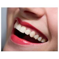 Bembeyaz Dişlere Sahip Olmak