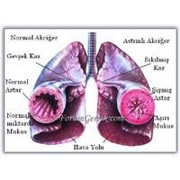 Astım | Bronşial Astım Nöbetleri | Tedavisi