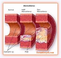 Kalp Ve Damar Hastalıklarına Karşı Önlemler