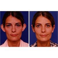 Kepçe Kulak Ameliyati Öncesi Ve Sonrası