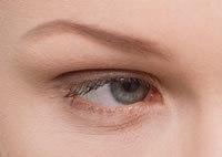 Gözlerdeki Şişlik