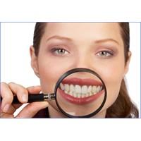 Bembeyaz Dişlerin Sırrı Çözüldü