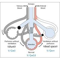 Solunum Fizyolojisi İle Fizyopatolojisi