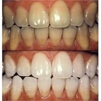 Diş Beyazlaştırmada Doğal Yöntemler