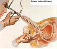 Prostata Karşı Doğal Koruyucu