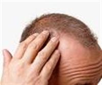 Saç Dökülmesi Şikayet Konusu Olmaktan Çıktı