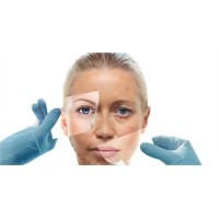 Ultherapy İle Ameliyatsız Güzelleşin