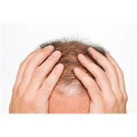 Sağlıklı Saçlara 5 Adım: Bölüm 5 …