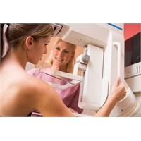 Meme Röntgeni (Mammografi) Nasıl Çekilir?