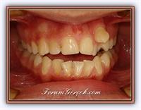 Ortodontik Tedavi Nedir ?