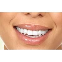 Diş Eti İltihabı Hastalığı Ve Bitkisel Tedavisi