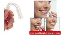 Yaygın Görülen Ortodontik Problemler