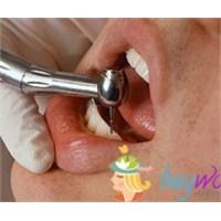 Erkeklerde Diş Estetiğin Önemi Nedir