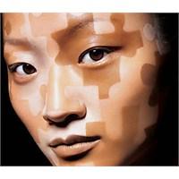 Vitiligo Hastalığı Tarih Mi Oluyor!