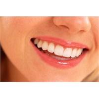 Diş Beyazlatmada Merak Ettikleriniz