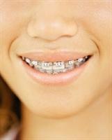 Dr. Çağdaş Kışlaoğlu:çocuklarda Sorunlu Dişlerde O