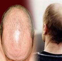 Kelliğe Çare - Saç Klonlama