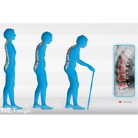 3 kadından 1inde osteoporoz var!