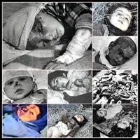Hocalı Katliamı - Dağlık Karabağ