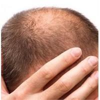 Saçlarımızdan Olmamak İçin Yapılması Gerekenler