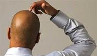 Saç Dökülmesine Karşı Pratik Ve Doğal Yöntemler