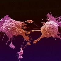 Kanser Tedavisinde Çığır Açabilecek Buluş