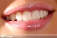 Diş Bozukluğu Yüz İfadenizi Etkiliyor