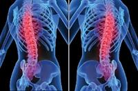 Osteoporoza Karşı Öneriler