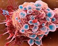 Kanser Tedavisinde Çığır Açan Gelişme