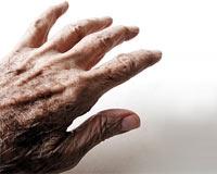 Parkinson a Yol Açan Gen Bulundu