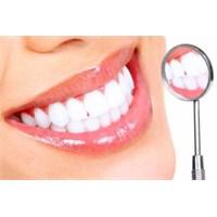 Diş Lekelerinden Kurtulmanın Yolları