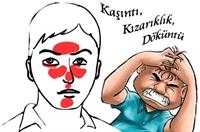 Seboreik Dermatit Hakkında Bilgiler