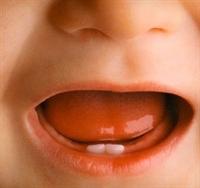 Çocuklarda Ve Bebeklerde Diş Çürümesi