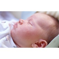 Bebeklerde Egzama, Belirtileri Ve Tedavisi