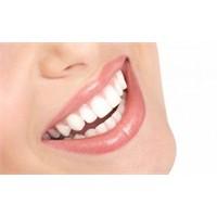 Bembeyaz Dişler Hayal Değil!