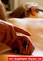 Gürkan Kubilay Akupunktur