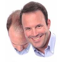 Saç Dökülmesini Engellemek Elinizde