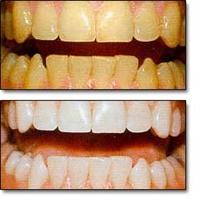 Dişleriniz Bembeyaz Olsun