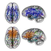 Kadın Beyni Ve Erkek Beyninde Büyük Fark