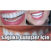 İnci Gibi Dişler İçin 10 Tavsiye